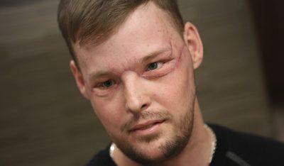 Спустя 10 лет после неудачной попытки суицида американец получил новое лицо
