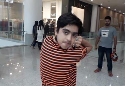 В Пакистане 14-летний мальчик научился поворачивать голову на 180 градусов
