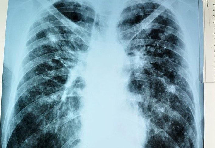 СМИ проинформировали о рекордном понижении смертности оттуберкулёза в РФ